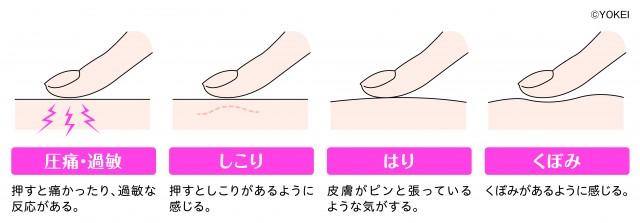 20151204yokei03