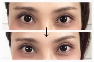 左目の高さが高くなっています! この後、さらに左右差をカバーするように眉を書き足したりして整えます。