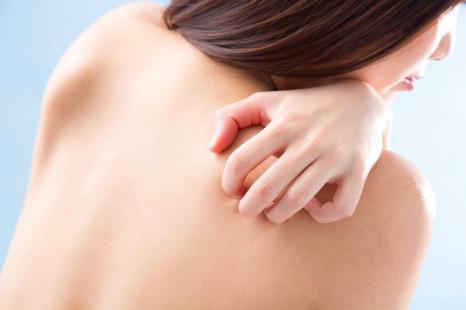 かゆみはなぜ起こる?皮膚科医に聞く「乾燥肌のかゆみ」対策
