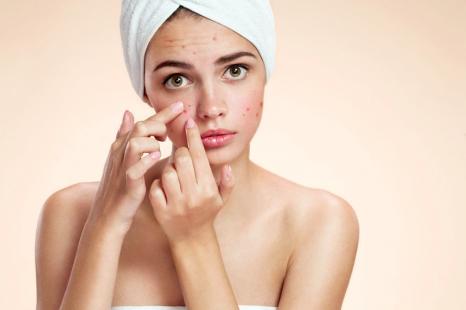 大人ニキビに湿疹…皮膚科医に聞く「肌荒れ」の原因と対策