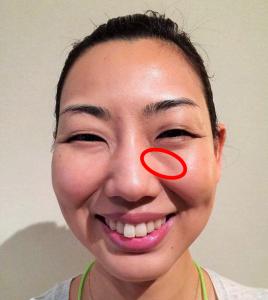 ゴルゴ線の原因と対処法 ゴルゴ線が目立つ顔