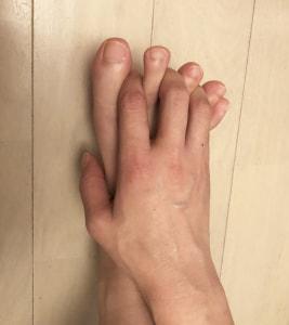 手の指を足の指と指の間に入れ込んで、ギュッとしめつけて刺激しましょう