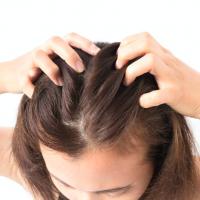 髪のためにすべきことは?専門家に聞く薄毛対策ウソ・ホント