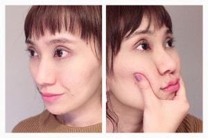 頬のお肉のボリュームがある状態のシミュレーションがこちらです