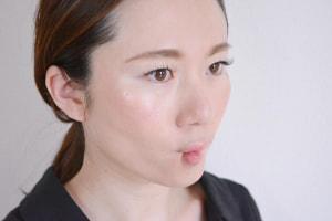 上唇部の老化