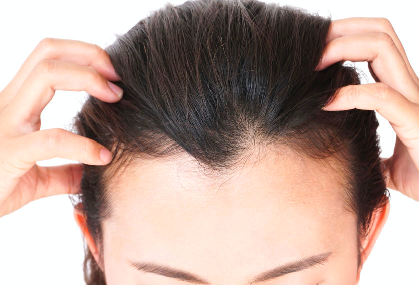 毛髪診断士が勧める!目的別「頭皮のお手入れアイテム」