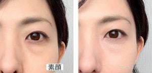 左が素顔、右がコンシーラーでカバーした画像です。ツヤがあり、キメが整ったきれいな肌に見えます