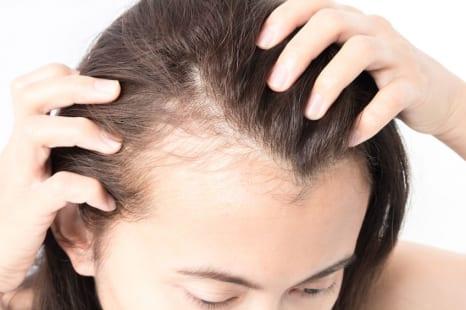 ヘアケアは内側から!?「薄毛」に良い注目の栄養素とは?