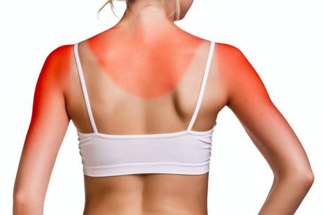 焼きすぎ肌はとにかく冷やす!ヒリヒリ日焼け肌のケア方法