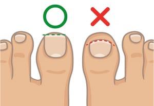 足の爪の切り方