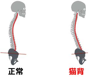 骨盤が後傾し、背骨が丸くなっている