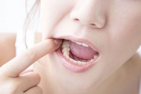 歯を失うことも?要注意!更年期の口腔トラブル