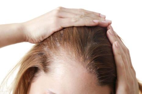 寂しい髪の原因は◯◯不足?豊かな髪を保つためのケア方法