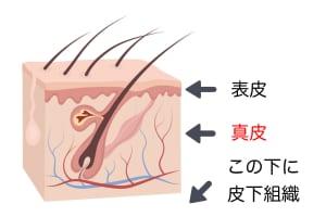 この真皮組織ですが、運動をすることで厚さを改善する効果が期待できます。しかし、運動をしても真皮の材料となるタンパク質が足りなければ、その効果を充分に発揮することはむずかしいです