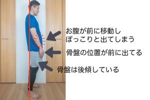 これを改善するためには、骨盤の前方向へのズレを正しい位置に戻す必要があります。そのためには、骨盤後傾を改善することが大切です