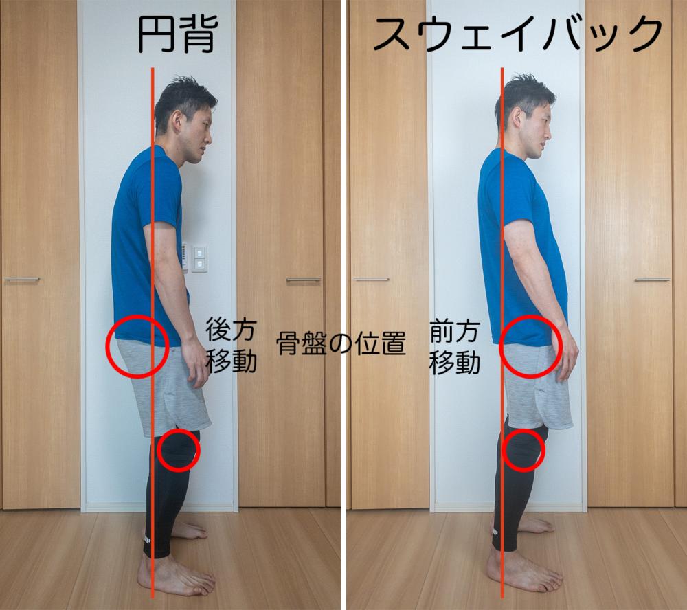 円背は骨盤の位置が後ろに動いているのに対して、スウェイバックは前側に移動しています。その結果、お腹のでっぱりが強調されてぽっこりお腹になってしまうのです