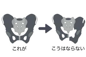 これらの骨は靭帯等で強力に固定されているため、なんらかの強い衝撃が加わらないかぎりズレることはありません。