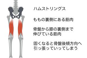 骨盤を後ろ側にひっぱる筋肉として、太もも裏の筋肉である「ハムストリングス」があります。この筋肉が硬いと骨盤を後ろ側に引っ張り骨盤後傾になってしまいます