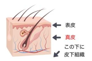 加齢とともに真皮組織は薄くなっていくのですが、薄くなった部分に皮下組織から脂肪が入り込み、たるみが発生します。ですから、皮膚のたれを防ぐためには、なるべく真皮組織が薄くならないようにすることが重要です