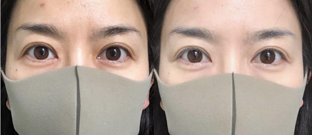 左側のメイク前の状態と比較して、右側は目元のくすみや額の吹き出物も目立たなくなり透明感のある仕上がりになりました