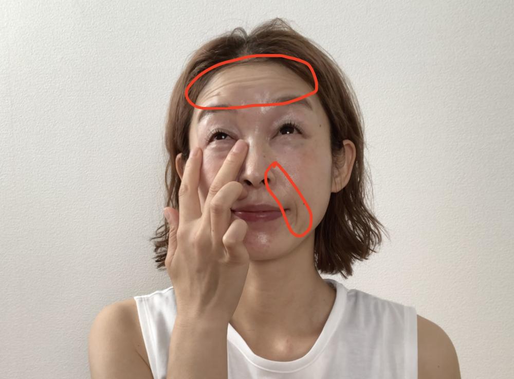目の下がたるんでいると、意外と眼輪筋の使い方が分かりづらいです。そのため、目の下を細める時に額や口周りの筋肉を使ってしまいやすく、額や口周りのシワの原因につながる場合があります