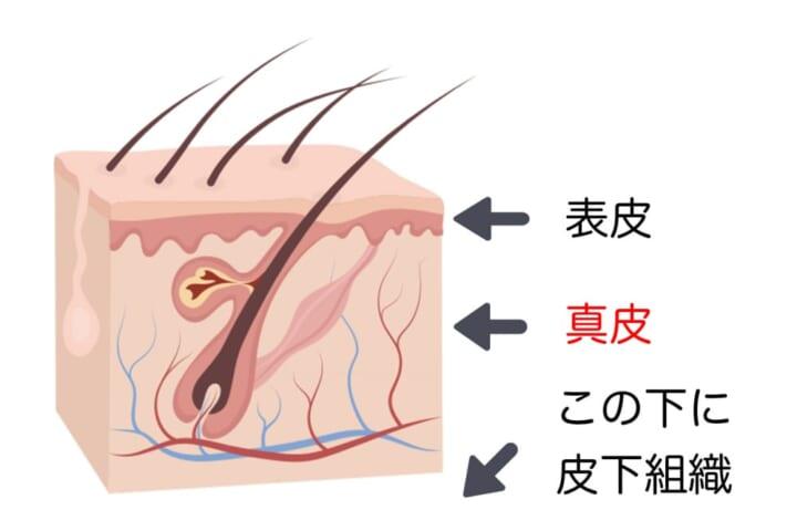 真皮組織の厚みは皮膚の垂れに大きく影響し、薄くなると皮膚の垂れやシワが発生すると考えられています。ですから、筋トレを実施して皮膚の垂れをある程度改善させることで、体型が整えやすくなると考えられるのです