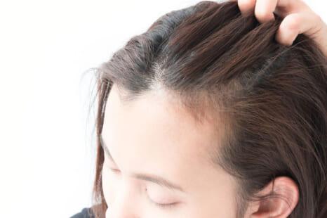加齢による「髪痩せ」脱出!理想的なボリュームを作るテク