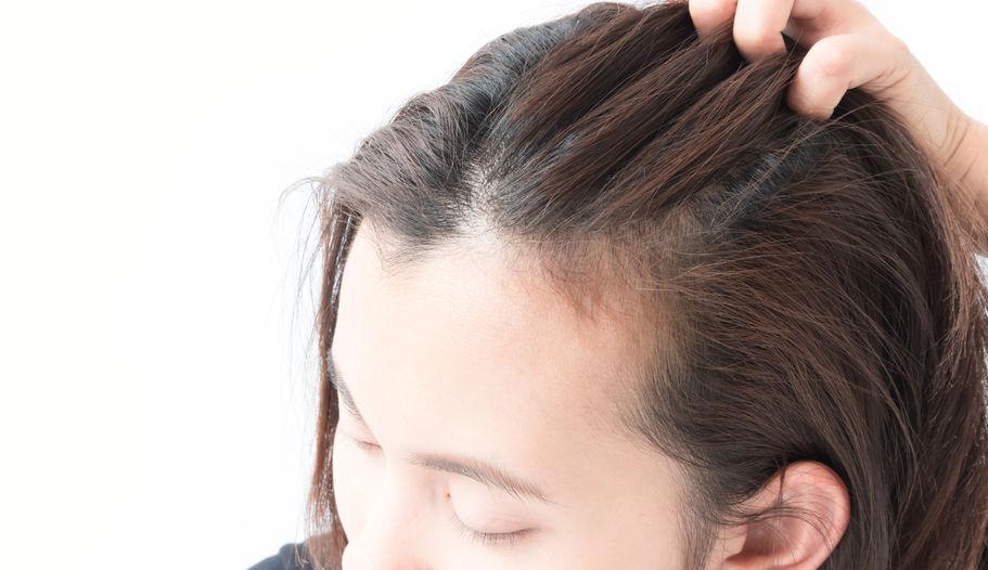 髪痩せに悩む女性
