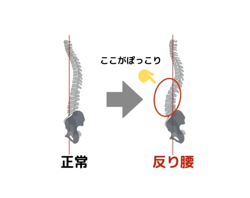 """例えば、お尻の筋肉が弱くなることで骨盤が前側に引っ張られ倒れてしまうと、""""反り腰""""という姿勢になってしまいます。反り腰になると、イラストのようにお腹がぽっこりと前に出てきてしまいます"""