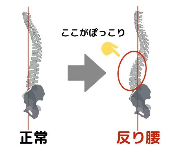 """腹筋が弱くなることで姿勢も悪くなりやすいです。姿勢が悪くなると聞くと、猫背を思い浮かべると思います。しかし、腹筋が弱くなると""""反り腰""""と呼ばれる悪い姿勢を招きます"""