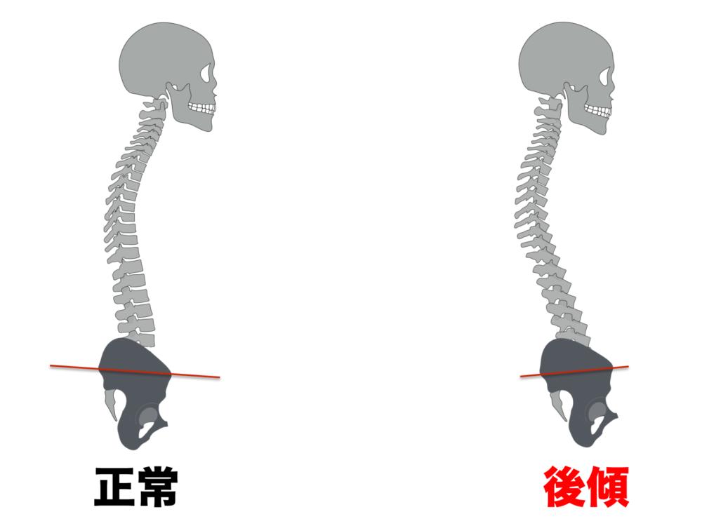 お尻の筋肉が固くなると骨盤が後ろに引っ張られて倒れてしまいます(骨盤後傾)。骨盤が後ろに倒れたままだと重心が後ろに移動してしまうため、人間は自然と重心を身体の真ん中に戻そうと代償運動を行います