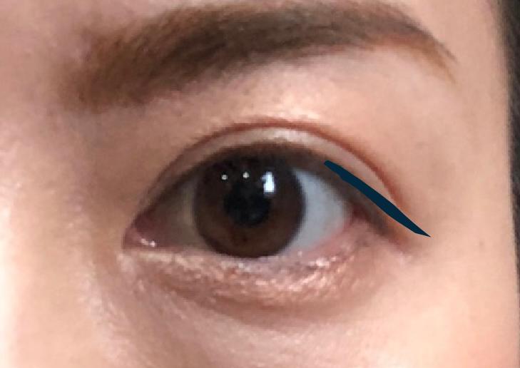 まつ毛の延長(目尻):目の横幅を大きく見せる