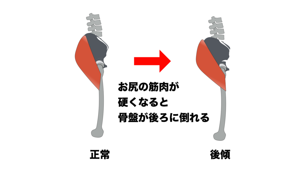 柔らか筋肉で垂れ尻を防ぐ!立ったままできるお尻ストレッチ